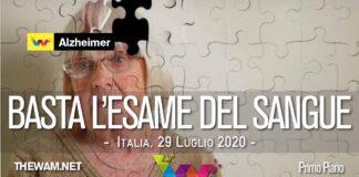 Alzheimer, basterà un esame del sangue per diagnosticare la malattia